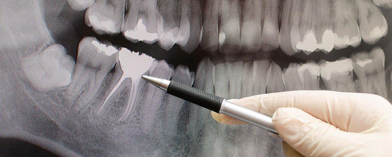 digital-dental-xray-modern