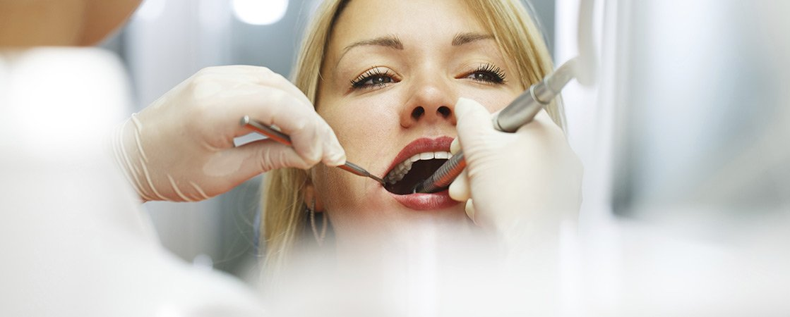 attractive-lady-at-dentist