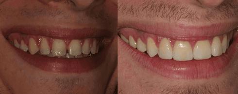 pulizia denti, interventi odontoiatrici, sbiancamento dentale