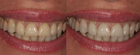 pulizia dentale, sbiancamento denti, sorriso