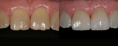 faccette dentali, faccette in ceramica, denti in ceramica