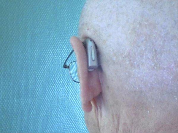 Occhiali a conduzione ossea