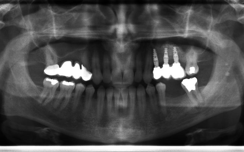 Radiografia Studio dentistico Orta di Atella