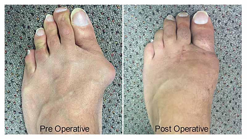 bunion feet patient 1