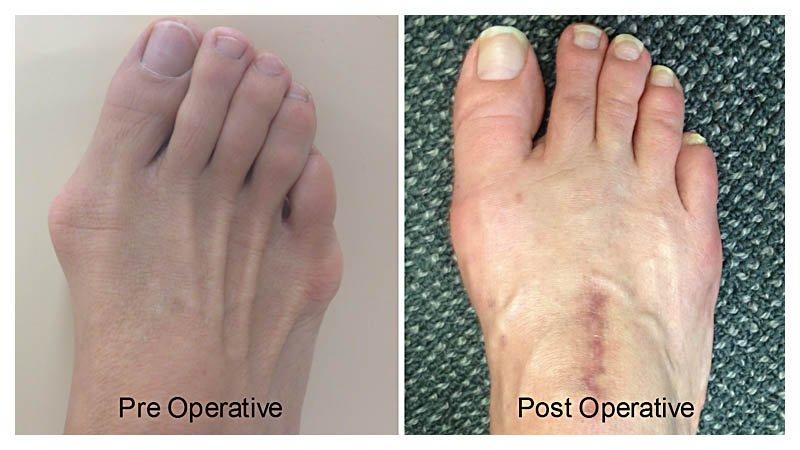 bunion feet patient 2