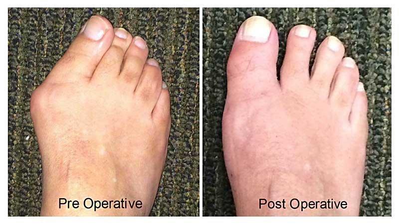 bunion feet patient 3