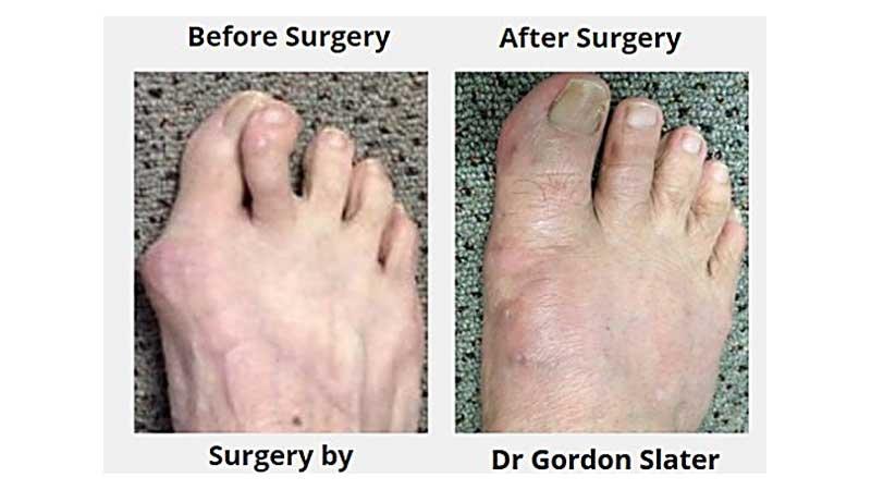bunion feet patient 6