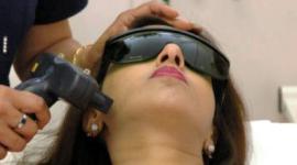 depilazione laser