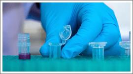 analisi batteriologiche