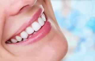 Estetica dentale genova
