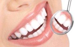 odontoiatria, ablazione del tartaro