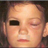 sinusite infantile