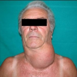 gozzo tiroideo