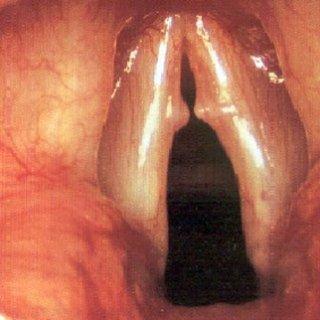 noduli corde vocali