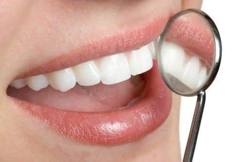 igiene pulizia dentale sbiancamento