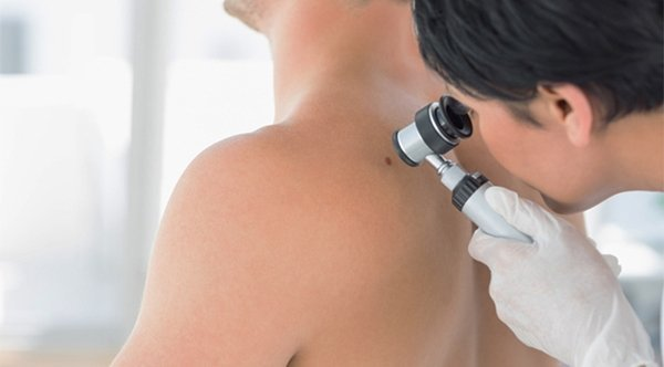 Newcastle Skin Check melanoma inspection