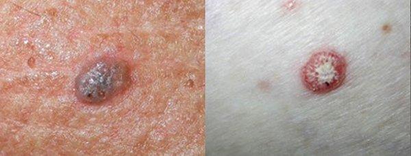 Seborrhoeic Keratosis (SK)