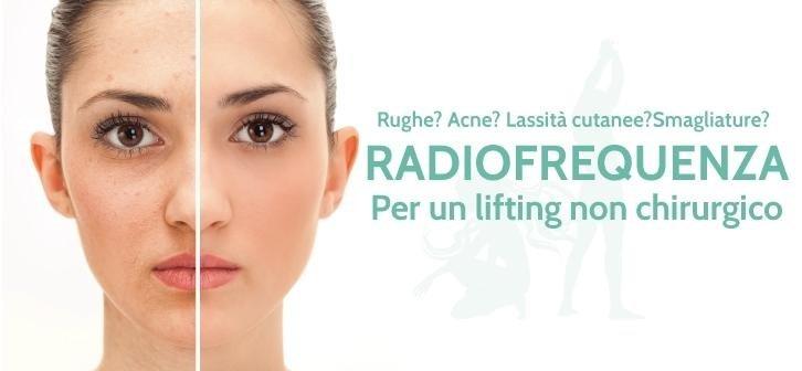 radiofrequenza