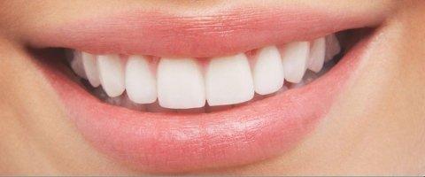 trattamenti dentali e rivitalizzante