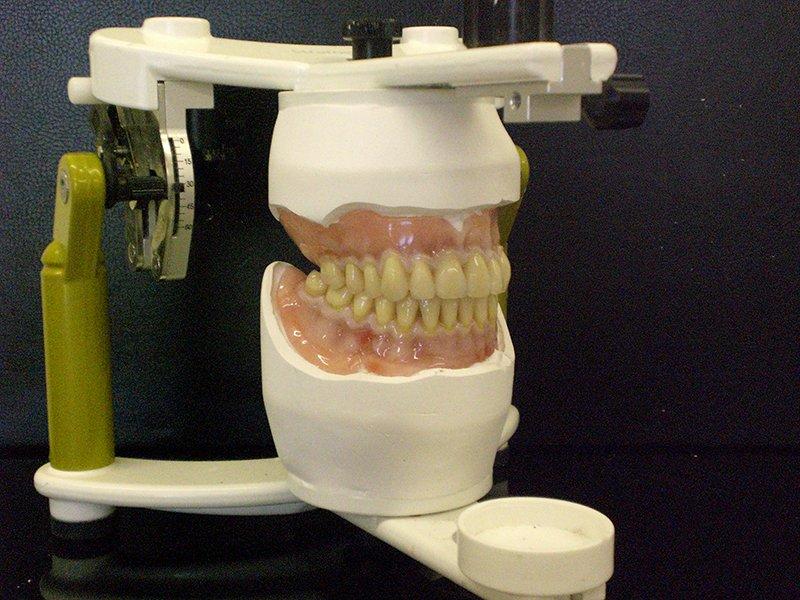 teeth sample