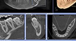esami radiologici tridimensionali