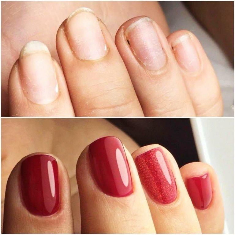 manicure prima e dopo