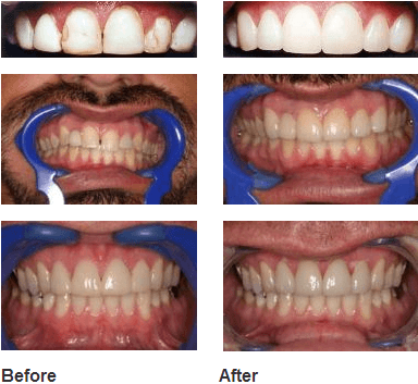 Before & after images of teeth