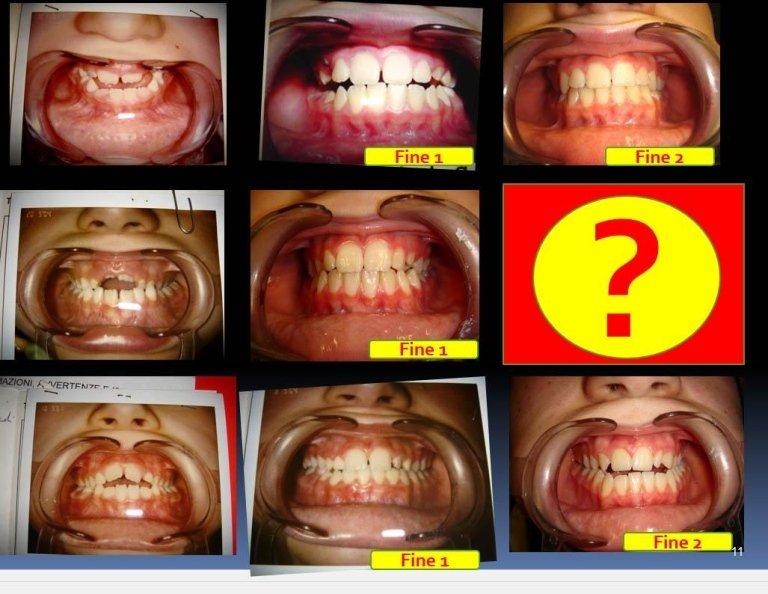 prima e dopo apparecchio denti