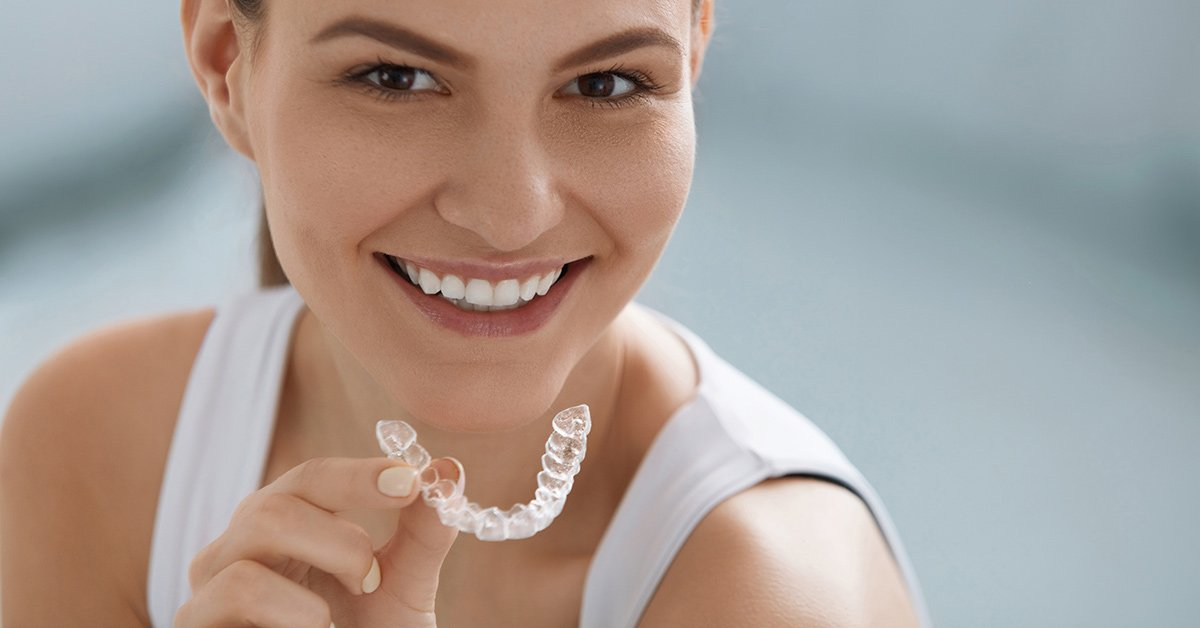 Invisalign Timeline: How Long Does Invisalign Take to ...