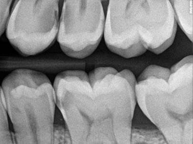 radiografia-endorale-digitale