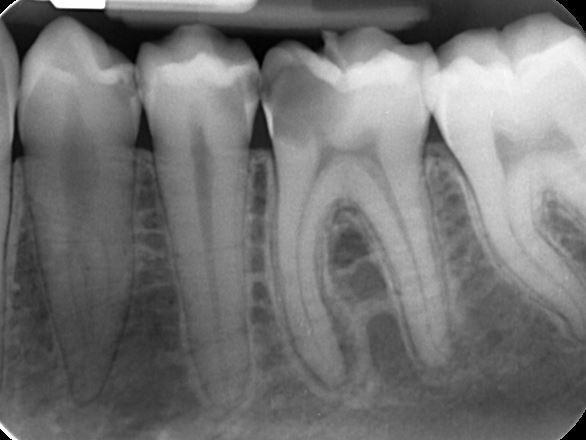 radiografia-endorale