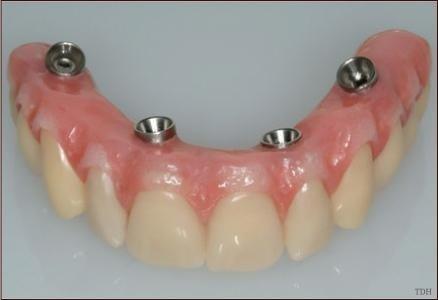 implantologia dentale Gela