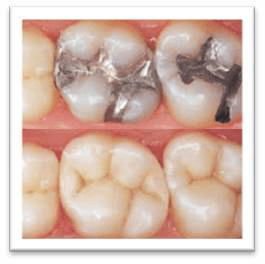 conservativa dentale