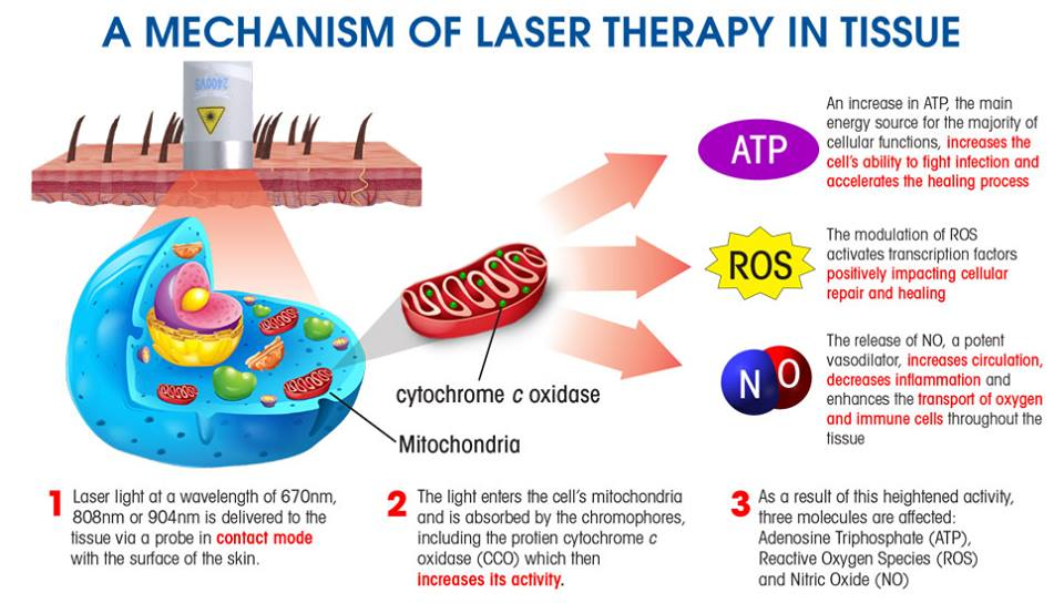 Healthcare Services In Wallsend Nsw Laser Pain Management
