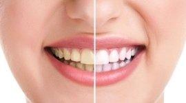 sbiancamento denti, applicazione faccette per denti, pulizia dei denti
