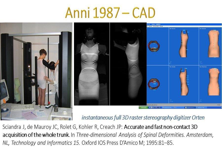tre immagini di radiografia 3D di un busto