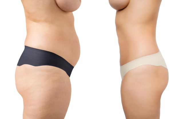 Cellulite Reduction San Antonio, TX | Sousan Med Spa