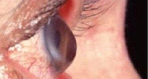 progressivo sfiancamento corneale, miopia, astigmatismo