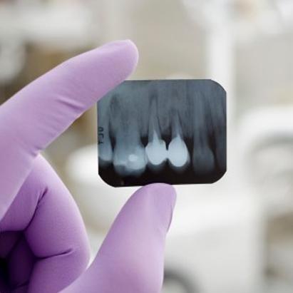 panoramica denti Chiavari
