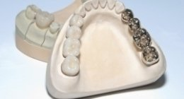 protesi fisse, protesi mobili, ortodonzia