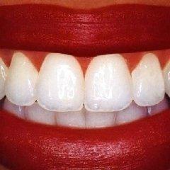 denti luminosi, odontoiatra, otturazioni estetiche denti