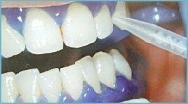 trattamento sbiancamento denti