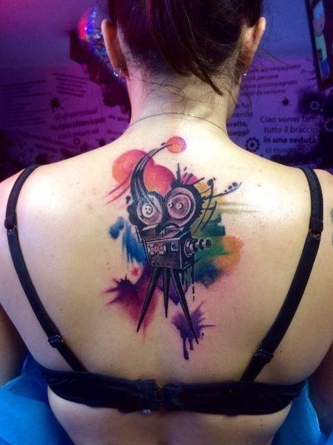 tatuaggio laser