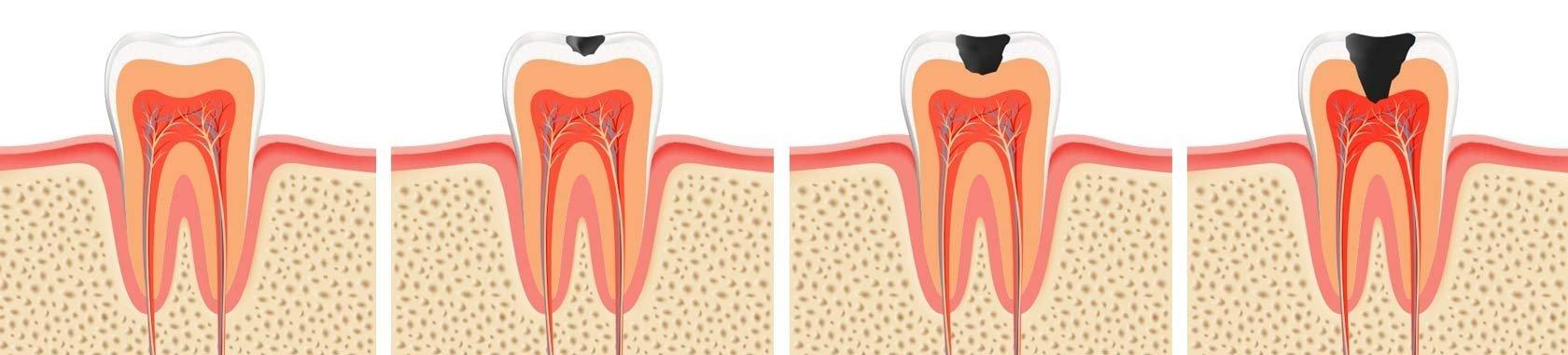Southport Dental Restoration