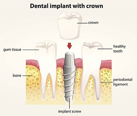 Southport Dental Implant