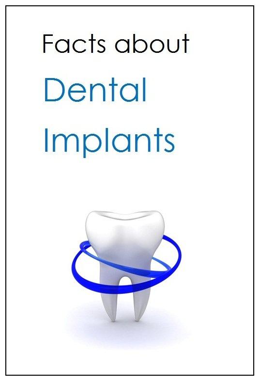 Free Dental Implant Report