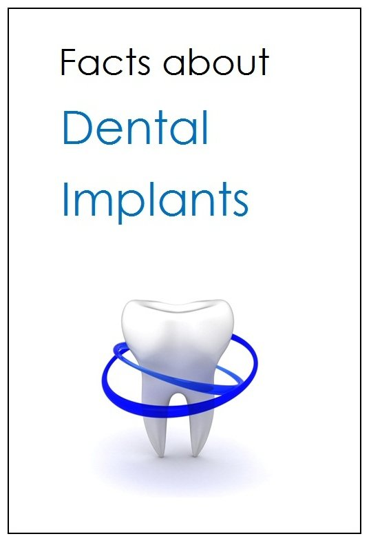 Free Dental Implant Report