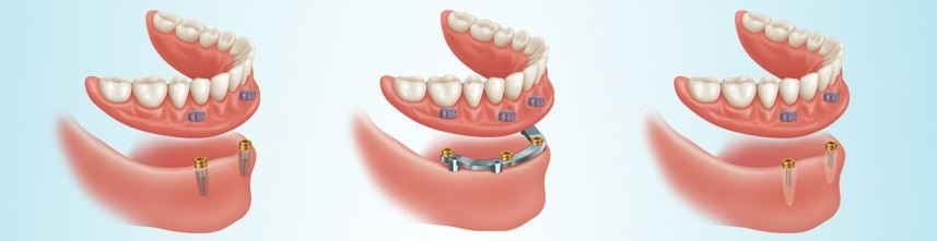 Implant Supported Denture Option
