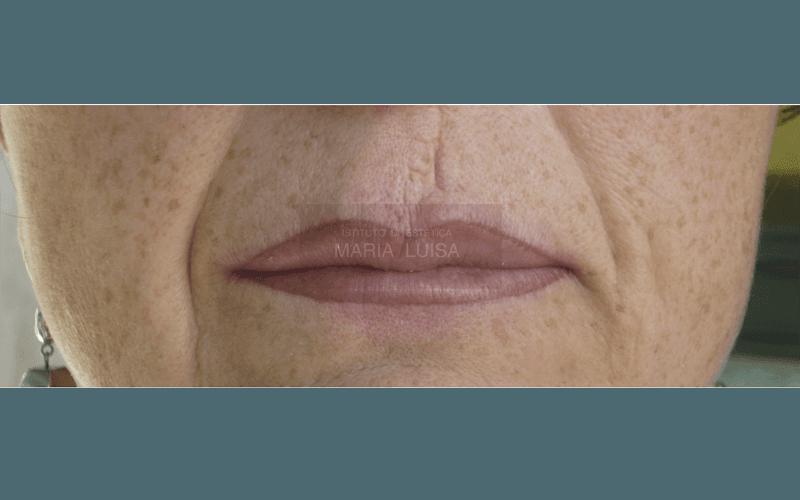 Prima e dopo di ricostruzione labbra con sfumatura effetto riempimento e copertura cicatrice