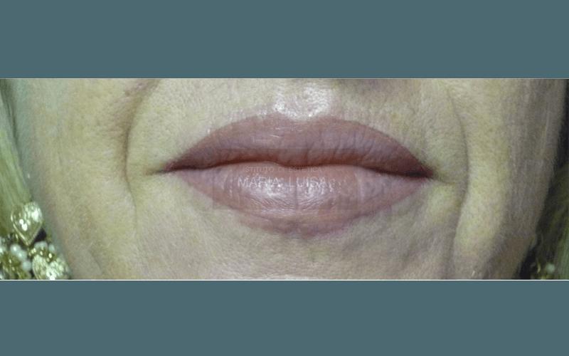 Labbra dopo lavoro di  ricostruzione labbra con sfumatura effetto riempimento ( Lavoro appena eseguito )